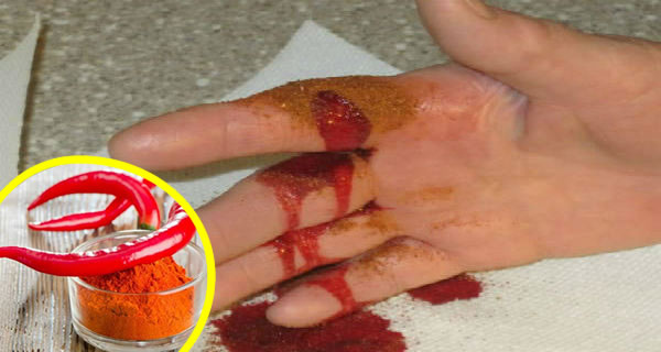 Stop Serious Bleeding in Just 10 Seconds!