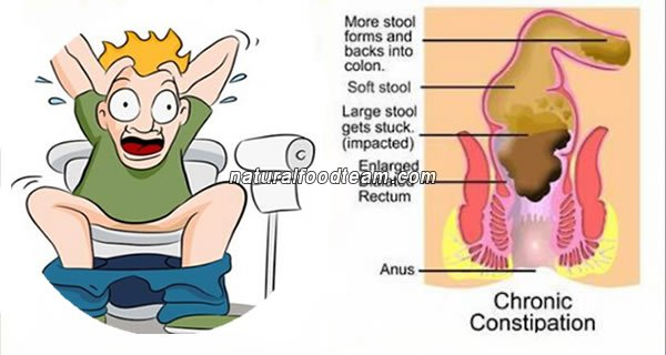 3 Home Remedies to Relieve Constipation