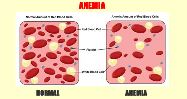 4 SIGNS OF A LOW RED BLOOD CELL COUNT