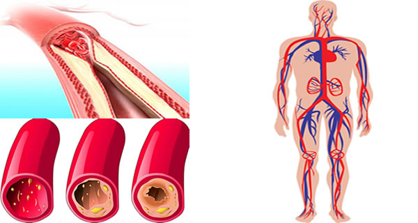 The Top 5 Foods That You Should Eat Daily For Clean Arteries