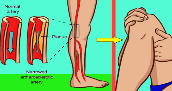 SIGNS YOU ARE SUFFERING FROM CLOGGED ARTERIES OR POOR BLOOD FLOW AND WHAT TO DO