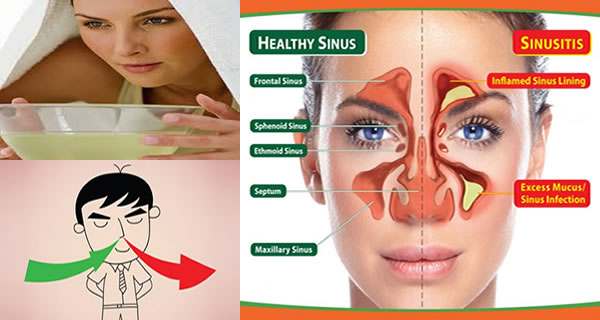 How To Remove Sinus Infection Within Minutes With A Kitchen Ingredient?