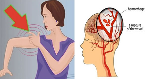 Strange Symptoms Of Stroke: Do Not Ignore Them, They Can Save Your Life