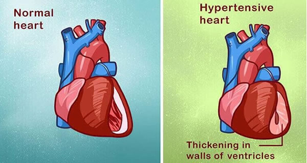 7 Powerful Home Remedies For Hypertension